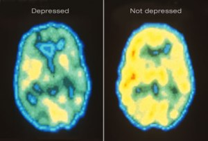 depressed brain scan
